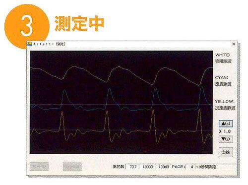 加速度脈波測定システム アルテット ラコントゥル