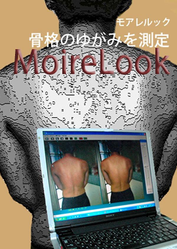 モアレルックは側湾症の観察や、筋肉や骨格のゆがみの測定装置 姿勢の歪みや体系を簡単に測定分析します ラコントゥル